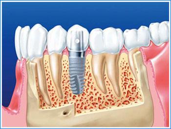 Имплантация зубов с малым сроком остеоинтеграции и иные стоматологические услуги